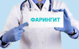 Фарингит лечение антибиотиками какими