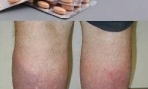 Детралекс это антибиотик или нет