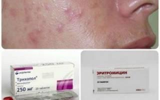 Лечение антибиотиками угревой сыпи