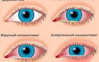 Мазь глазная с антибиотиком