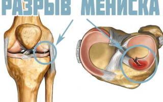 Какой антибиотик и как применяют после артроскопии коленного сустава