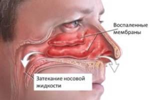 Антибиотик от синусита и гайморита