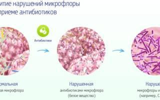 Антибиотики при дисбактериозе