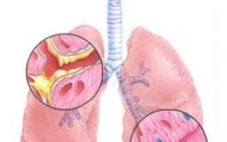 Антибиотики при бронхите хроническом