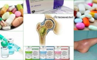 Антибиотики при остеомиелите кости