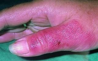 Как лечить рожу на ноге в домашних условиях антибиотиками