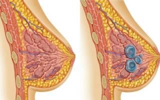 Антибиотики при мастопатии