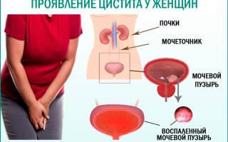 Можно ли при цистите пить амоксициллин