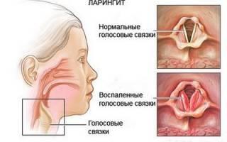 Ларингит лечение у взрослых антибиотиками