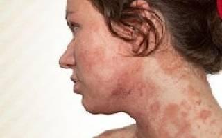 Аллергия после приема антибиотиков лечение
