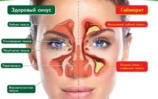 Гайморит симптомы лечение антибиотиками